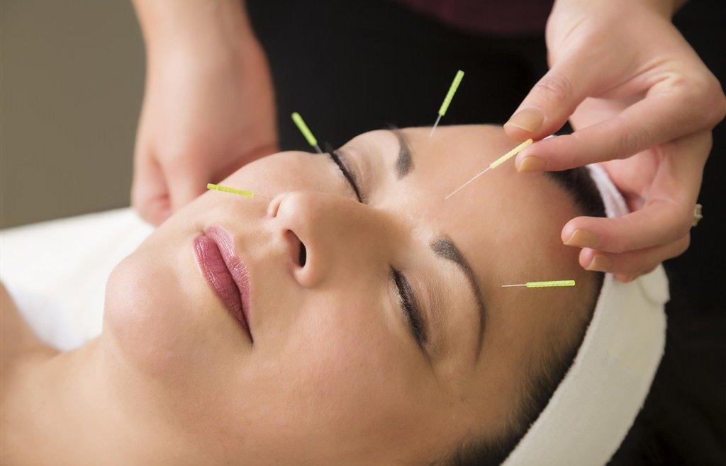 Kozmetik Akupunktur Nedir?