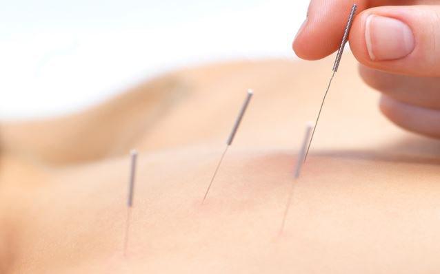 Akupunktur İle Boyun Ağrısı Tedavisi