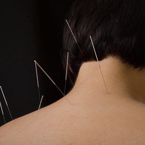 Akupunktur İle Boyun  Fıtığı Tedavisi