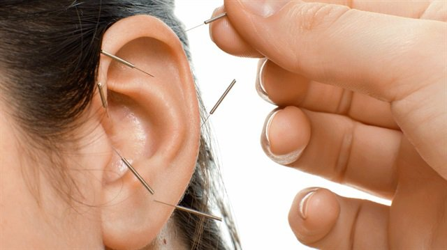 Akupunktur Panik Atak Tedavisi