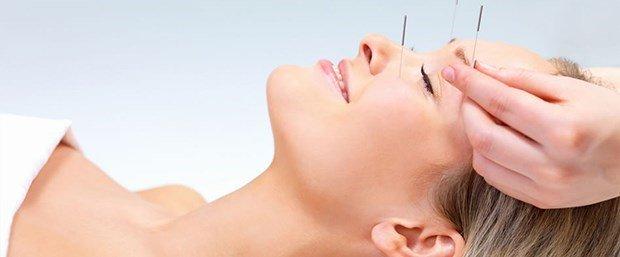 Akupunktur ile Depresyon Tedavisi