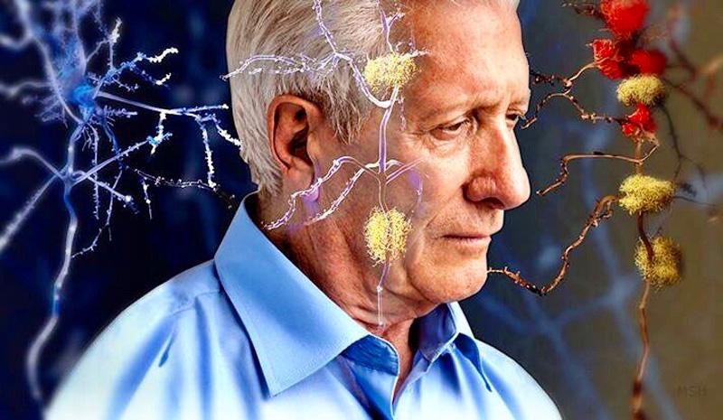 Ozon ile Alzheimer Tedavisi