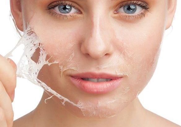 Peeling Sonrası Nelere Dikkat Edilmelidir?