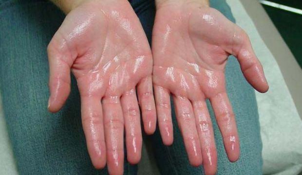 El Terlemesinde Akupunktur Tedavisi