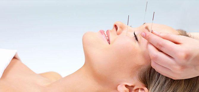 Kozmetik Akupunktur Nerelerde Kullanılır?