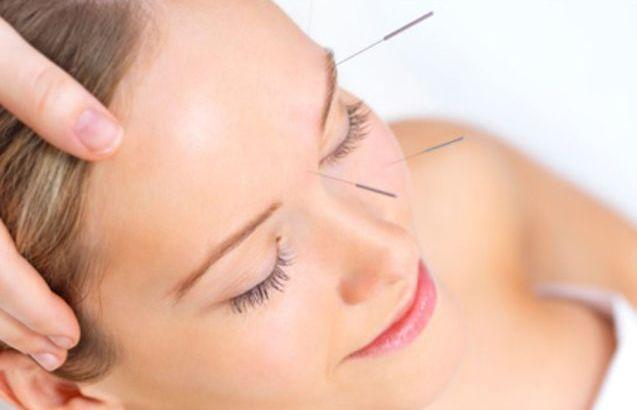Kozmetik Akupunktur Etki Mekanizması